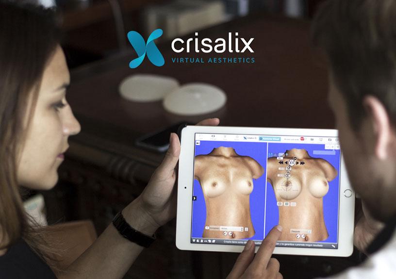 simulacion de reconstruccion de mamas en sevilla