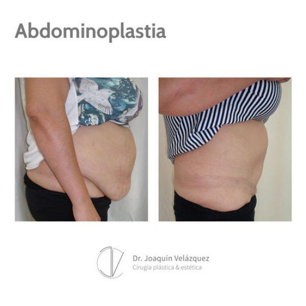 abdominoplastia en sevilla antes y despues