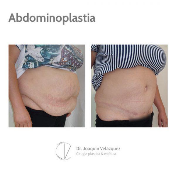 abdominoplastia sevilla cirugia antes y despues