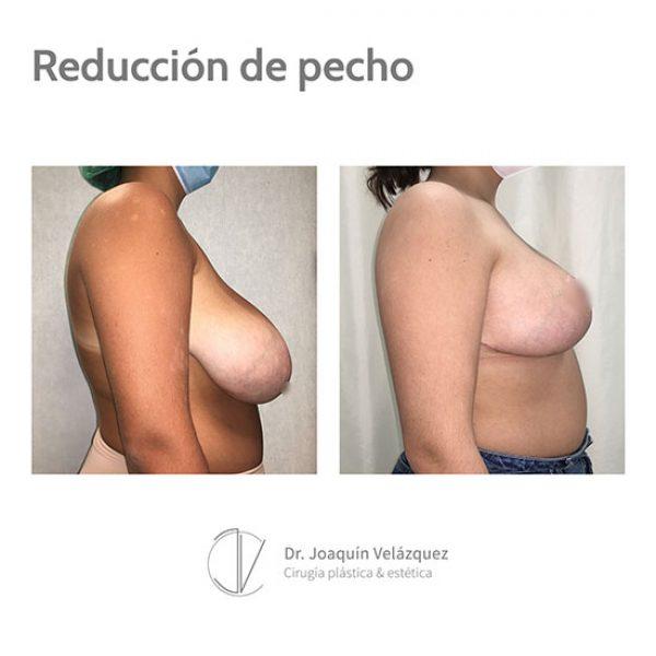 reduccion de senos sevilla